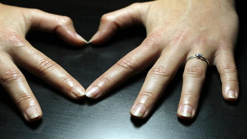 benefits of biotin for skin