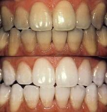 Discolored Teeth