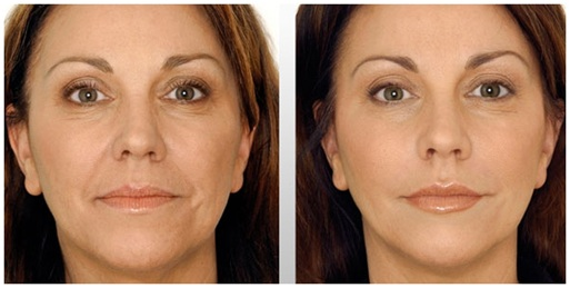 Some Important Facts of Facelift Lift Surgery