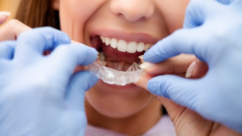 8 Do's and Don'ts When Undergoing Invisalign Treatment